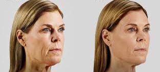 Wendy Wilken's Facial Yoga Exercise Program And Natural Facelift