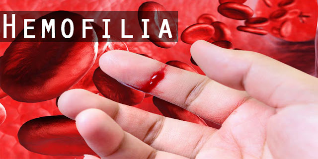 Obat Hemofilia Herbal
