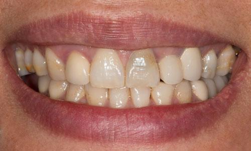Cara Memutihkan Gigi Mati Cara Memutihkan Gigi