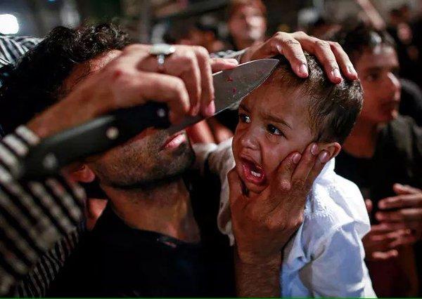 Anak-anak Syiah Dilukai Kepalanya Hingga Berdarah Demi Ritual Asyura (Foto 18+)
