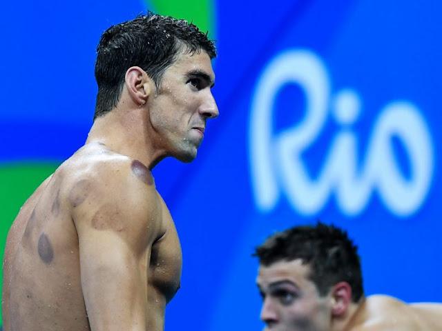 Atletas olímpicos tienen estos círculos rojos en la espalda