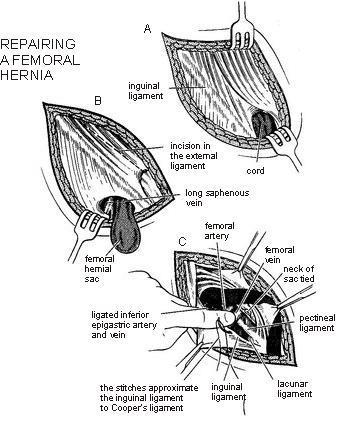 femoral hernia anatomy - photo #18