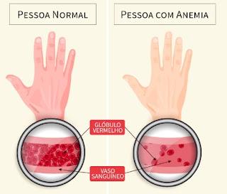 Pengobatan Untuk Mengatasi Penyakit Kurang Darah (Anemia) Secara Alami, Aman Dikonsumsi Tanpa Efek Samping