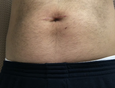 Four weeks after hernia repair at Shouldice  - front