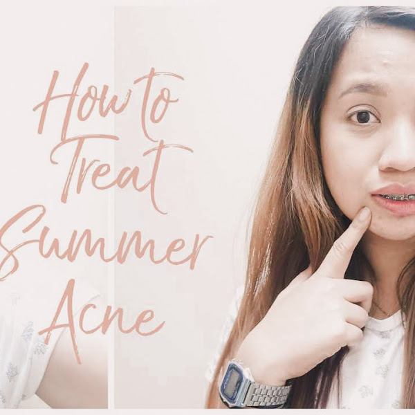 How to treat Summer Acne