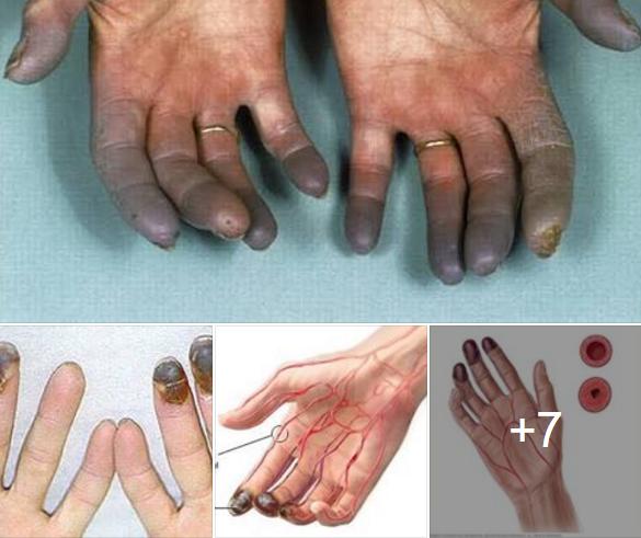 Penyakit Buerger Disease
