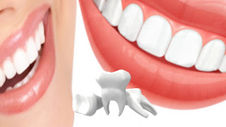 Tighten Loose Teeth With These Home Remedies