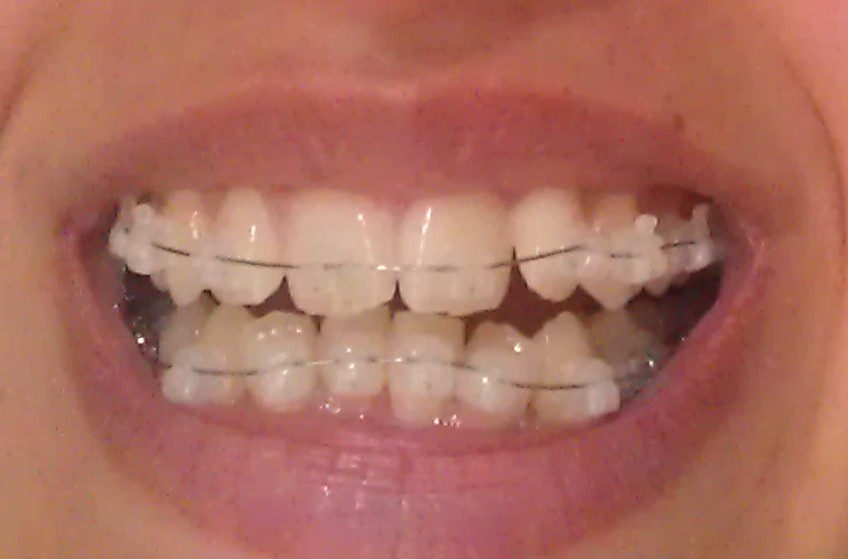 My Damon Clear Braces May 2013