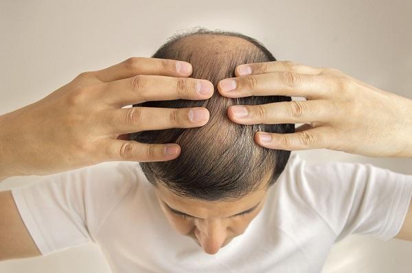 9 Maneiras Eficazes Para Parar a Queda de Cabelo nos Homens