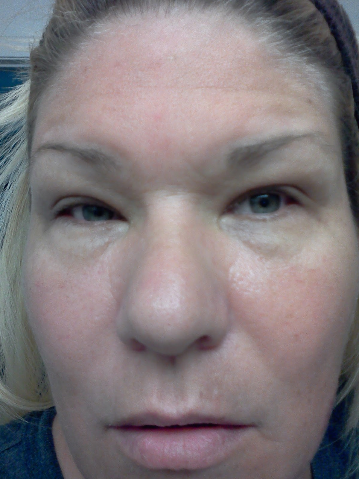 facial swelling and concrete rash
