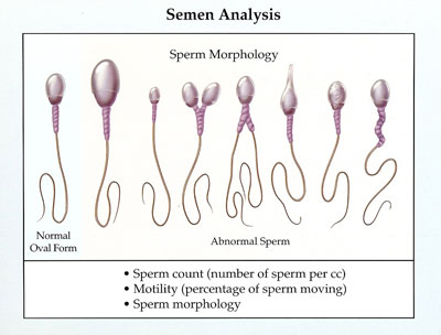 How much is a sperm analysis