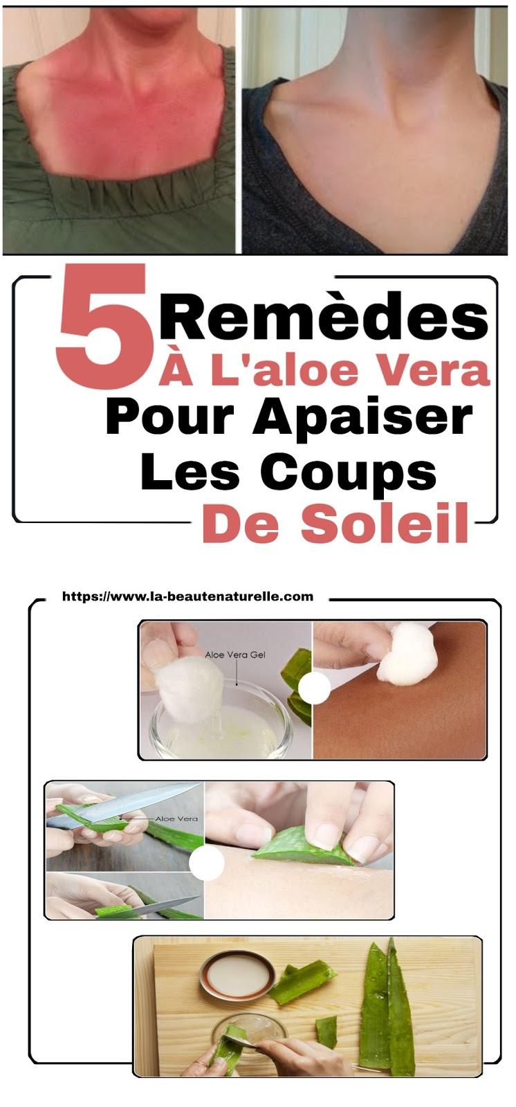 5 Remèdes À L'aloe Vera Pour Apaiser Les Coups De Soleil