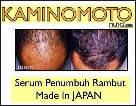 Testimoni Obat Penumbuh Rambut Kaminomoto Mengatasi Kebotakan Untuk Semua Jenis Rambut Pria dan Wanita