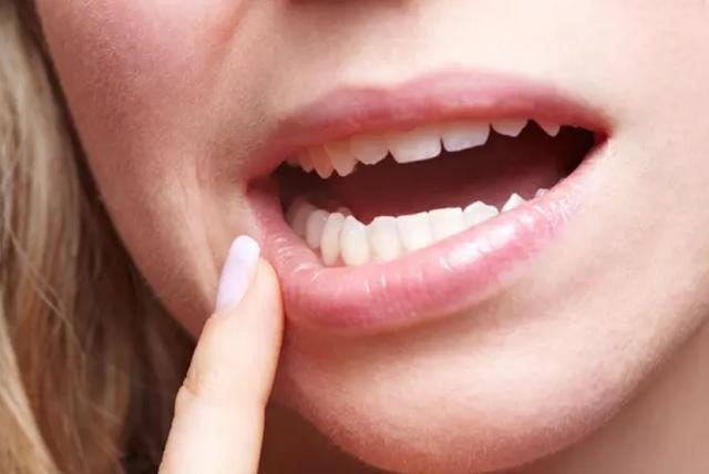 Acyclovir oral - healtinews