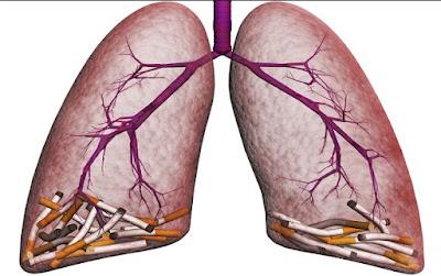 Rokok Salah Satu Penyebab Penyakit Kanker