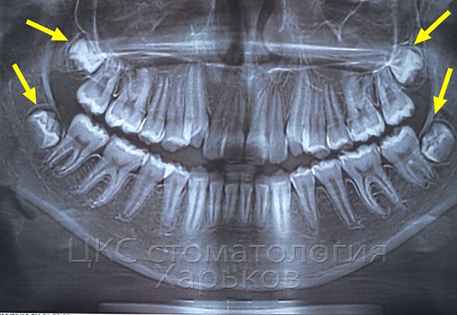 панорама до ортодонтического лечения