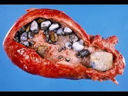Obat Tradisional Untuk Penyakit Kencing Batu images%2B%25287%2529