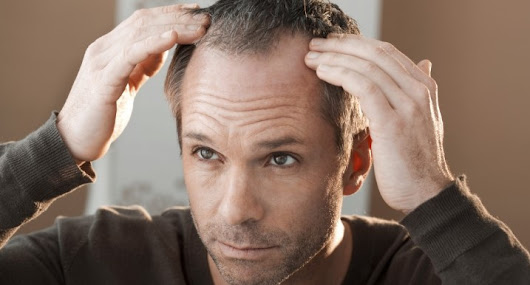 How Hair Loss Solutions for the Young Bald Man?
