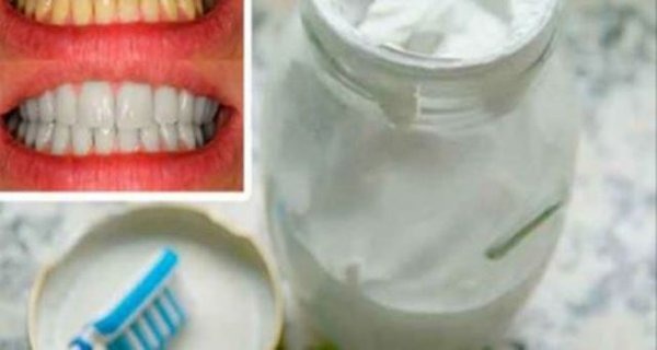 Say Goodbye To Bad Breath, Tartar And Plaque With This Home Dental Whitening Toothpaste.