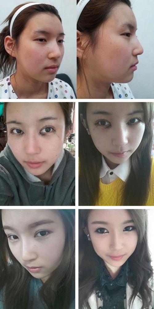 plastic Surgery photos-3