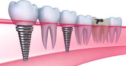 Tips for Keeping Your Implant in Good Condition from an Implant Dentist
