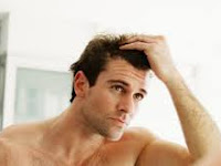 Simak, Ini 5 Kesalahan Umum Perawatan Rambut Pada Pria