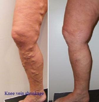 घुटने की नस का सिकुड़ना-Knee Vein Shrinkage