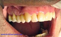 "<Imgsrc=""dientes-hipersensibles.jpg"" width = ""400"" height ""244"" border = ""0"" alt = ""Recesión gingival con hipersensibilidad"">"