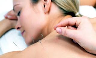 Anestezide Neden Akupunktur Kullanılır?