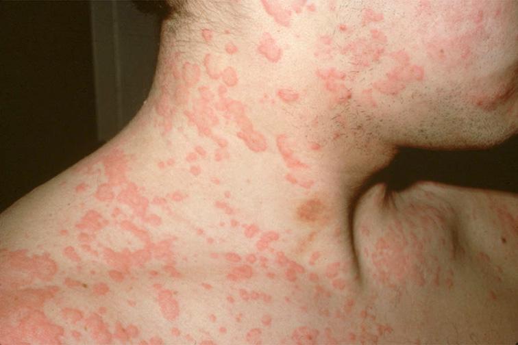 Image result for त्वचा के रोग