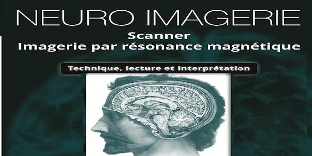 Neuro iMagerie Scanner iRM, Téchnique,Lecture et iNterprétation pdf
