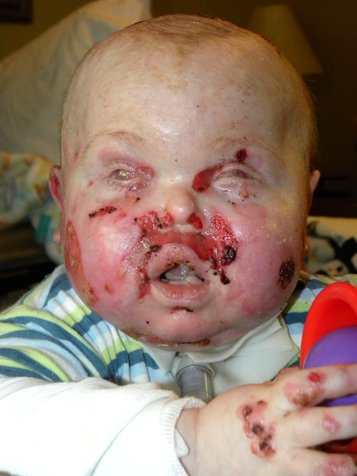 Party of Three!: Epidermolysis Bullosa Awareness...
