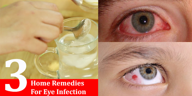 How To Treated Eye Infections At Home - Home Remedies For Eye Infections