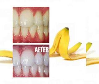 6 Best Ways to Use Banana Peel For Teeth whitening