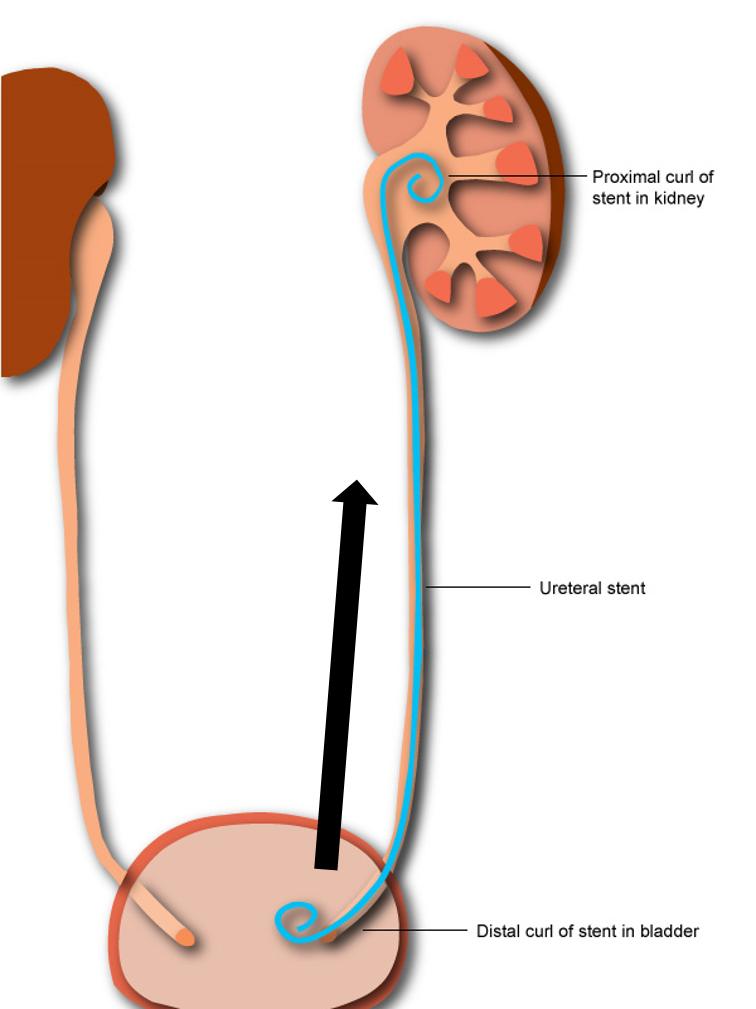 Perineostomia e rimozione chirurgica di stent uretrale