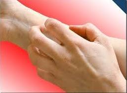 Tiga Cara Mencegah Penyakit Kulit
