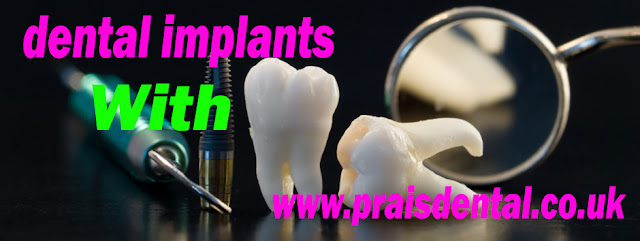Dental Implants Treatment Is Better Than Traditional Bridgework Replacement
