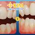 Gãy răng hàm làm sao khắc phục ?