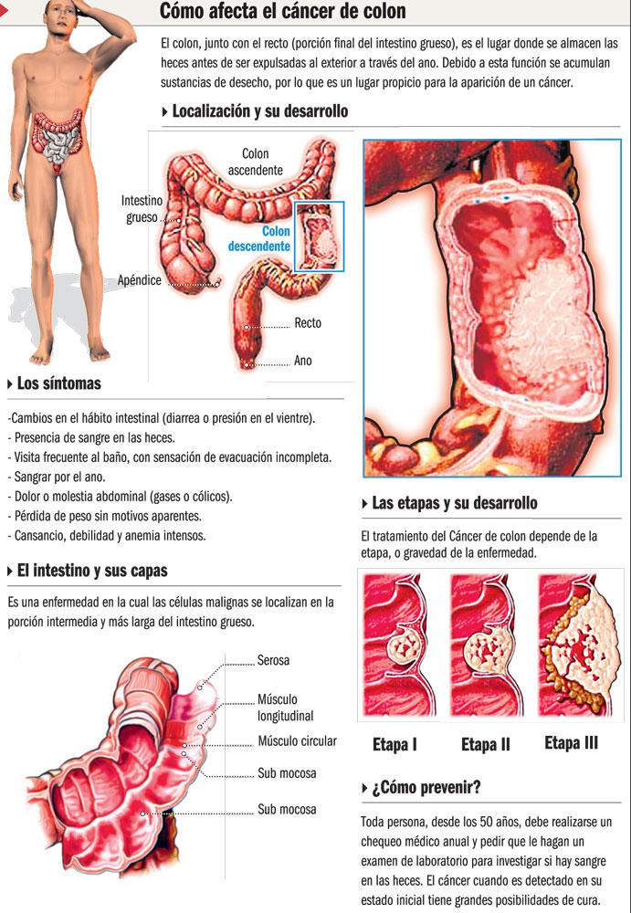 Cuidados De Enfermeria En Patologia Digestiva Cuidados En Cancer Colon Rectal Ostomias