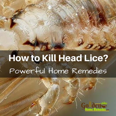 Neem Oil For Lice, Neem Oil For Head Lice, Head Lice Treatment, How To Get Rid Of Hair Lice, Home Remedies For Head Lice, Head Lice Home Remedies, How To Get Rid Of Head Lice, Treatment For Head Lice, How To Remove Head Lice, How To Treat Head Lice, Hair Lice, Hair Lice Remedies, Head Lice Remedies
