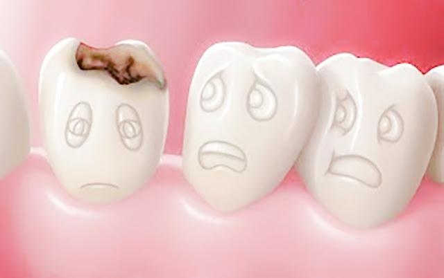 Cara Mengatasi Gigi Berlubang dengan Mudah Secara Alami