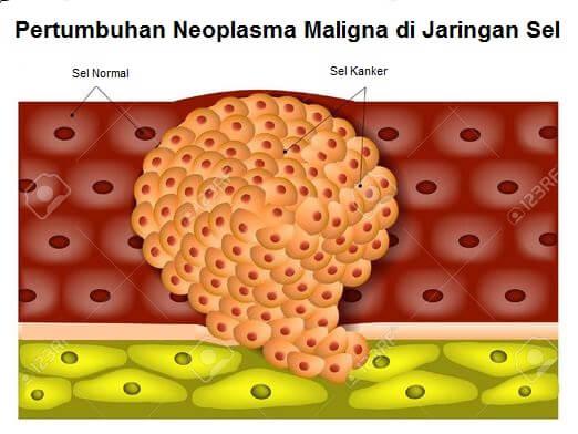 Gambar neoplasma maligna tumbuh dan berkembang di atas sel kulit