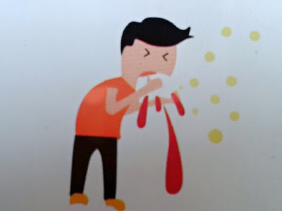 Gambar Gejala Tuberkulosis (TBC), Penyebab Dan Cara Mencegah TBC