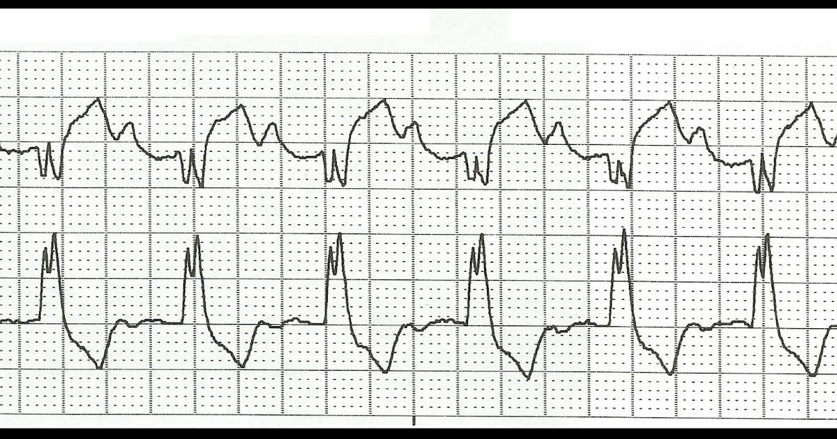 Float Nurse: Basic EKG Rhythm Test 01