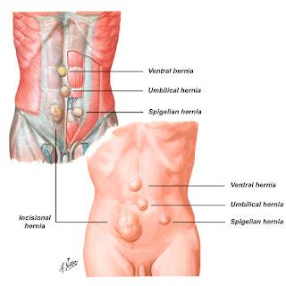 Origen de las hernias
