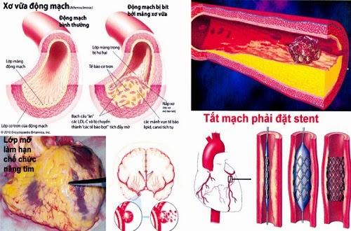 Chi phí điều trị bệnh tim Herbalife Niteworks