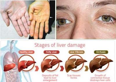 http://mustahabbah.blogspot.com/2017/03/tips-menyembuhkan-penyakit-liver-secara.html