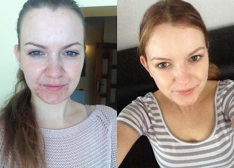 Izotretynoina, skutki uboczne i efekty jakie uzyskałam po 8 miesiącach kuracji. Kuracja izotretynoiną tabletkami Axotret.