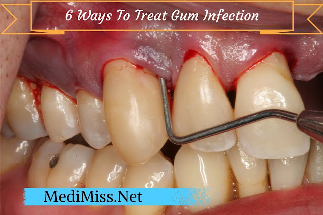Natural Ways To Treat Gum Disease