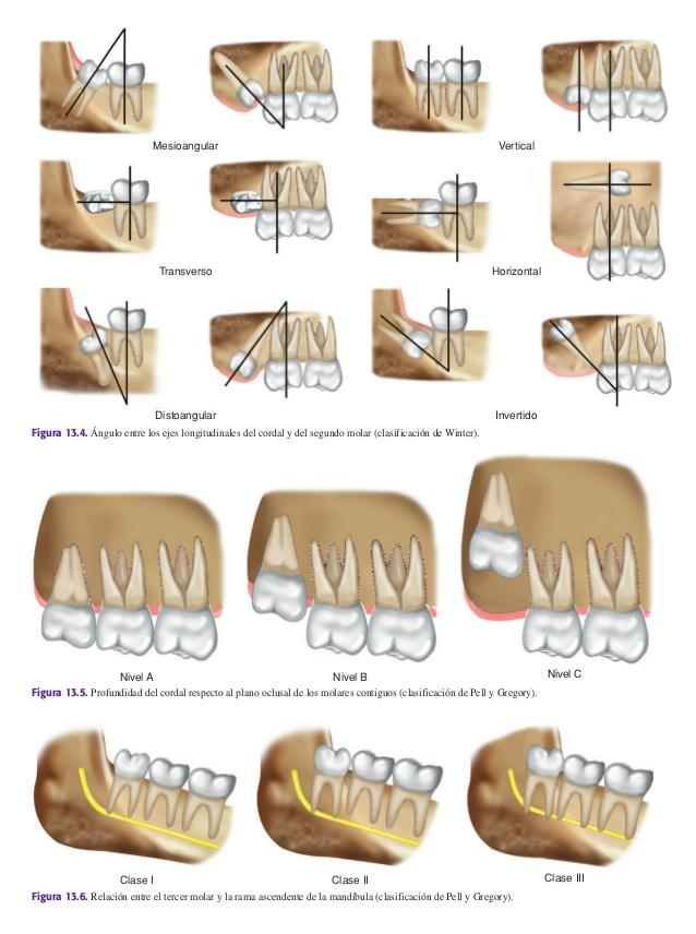 Exodoncia terceros molares inferiores y superiores